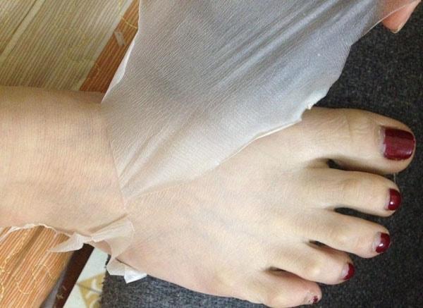 Tác hại của lột da tắm trắng