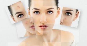 Các loại mặt nạ trị mụn đầu đen hiệu quả cho bạn gái tuổi 20 4
