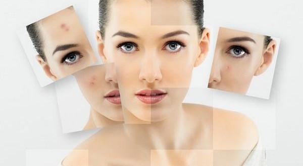 Các loại mặt nạ trị mụn đầu đen hiệu quả cho bạn gái tuổi 20 2