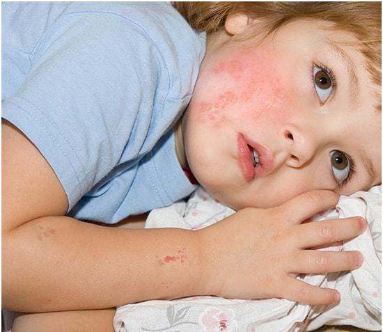 Trẻ em bị zona thần kinh có nguy hiểm không?