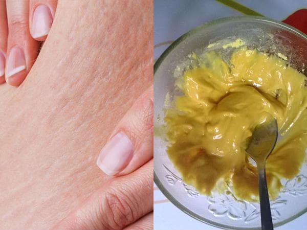 Sử dụng hỗn hợp nghệ với sữa chua để trị rạn da