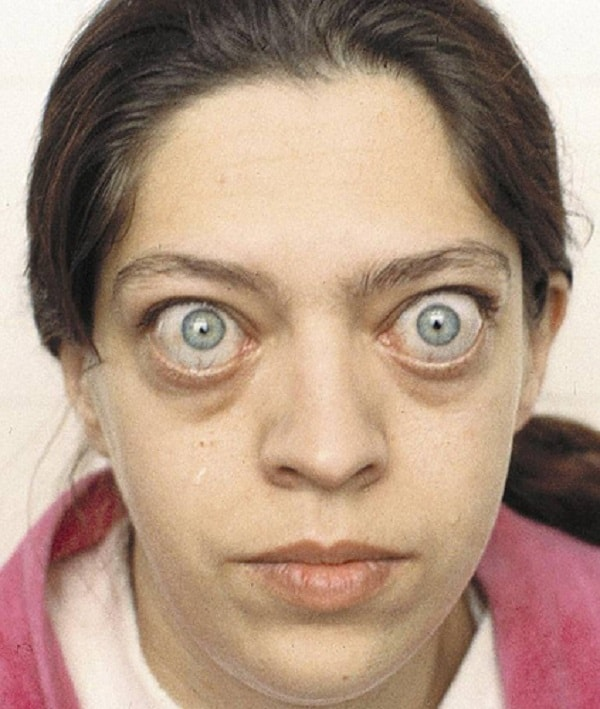 biểu hiện của bệnh bướu cổ basedow 1
