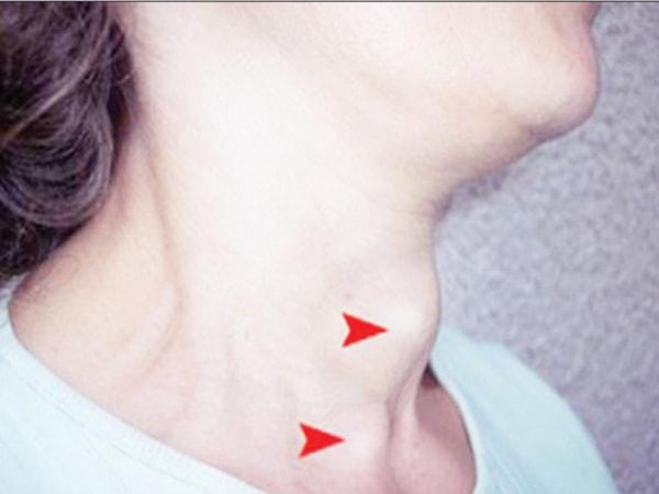 biểu hiện của bệnh bướu cổ basedow