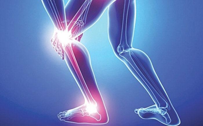 Tổn thương xương gây ra đau xương khớp và lâu dần biến chứng thành thoái hóa khớp.